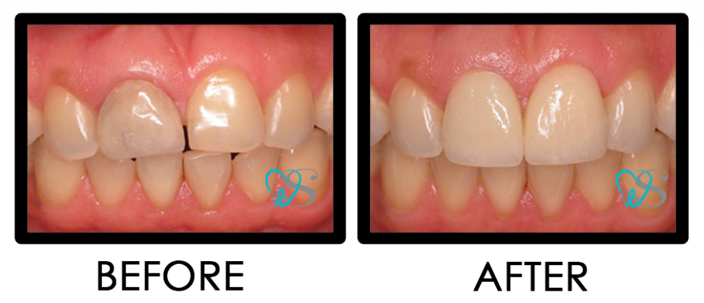 Dental Crown Porcelain Bridge